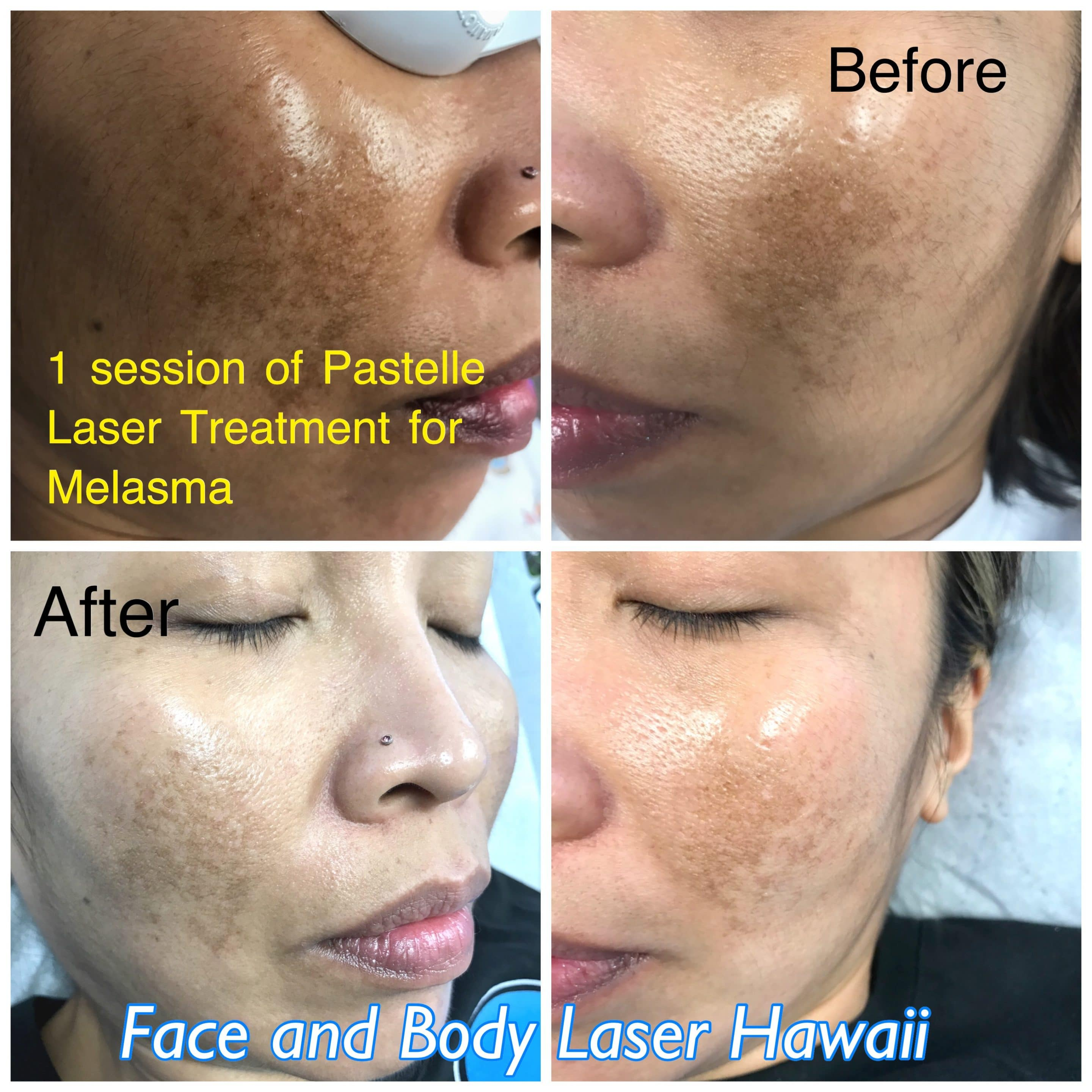 1 session of Pastelle Laser Treatment for Melasma