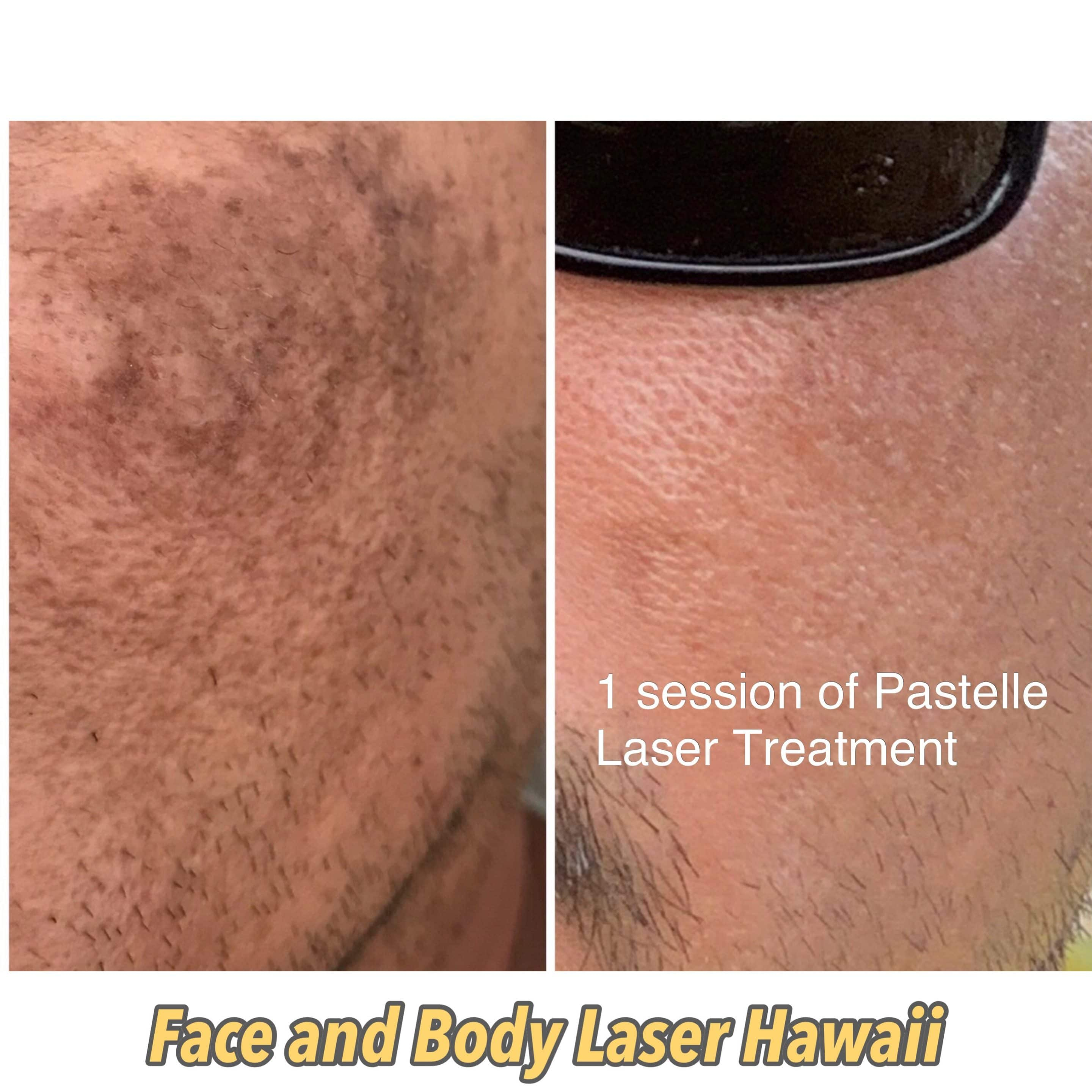 1 session of Pastelle Laser Treatment